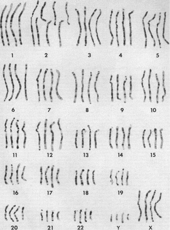 """Comparação lado -a-lado dos cromossomos de humanos, chimpanzés, gorilas e orangotangos  (da esquerda para a direita o para cada cromossomo ) De Yunis JJ, Prakash O, """" A origem do homem: o cromossômico legado pictórico, """" Ciência, 19 de março 1982. Reproduzido com permissão da AAAS."""