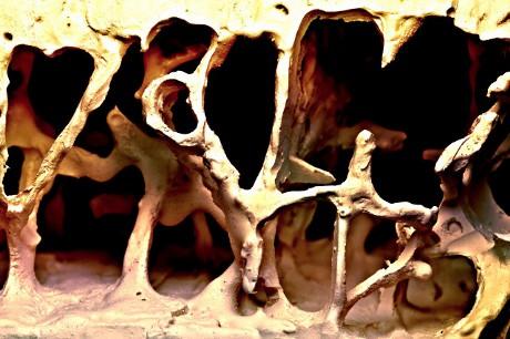 Estrutura trabecular de um osso afetado pela osteoporose. (© Pasieka / / Science Photo Library / Corbis)
