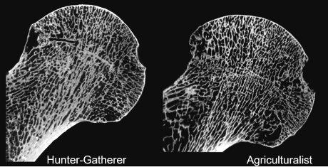 A comparação da estrutura óssea de um caçador-raccoglitiore e um agricultor. (Cortesia Timothy M. Ryan)