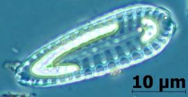 diatomáceas são protistas unicelulares com frústula silicosa. Cada frústula é formada por duas valvas, ligeiramente desiguais (a menor das valvas encaixa-se na maior). Habitam a zona fótica dos oceanos (até cerca de 200m de profundidade), mares, lagos e rios, apresentando tanto formas bentônicas como planctônicas. Podem ser solitárias ou coloniais.