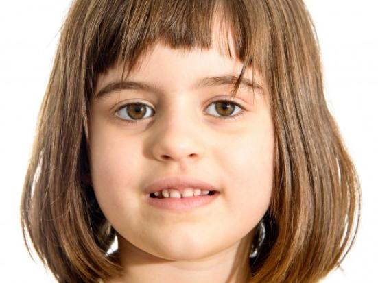 BRUCE MCINTOSH / ISTOCKPHOTO Traços europeus comuns, como pele pálida evoluiu relativamente pouco tempo na Europa central e do sul