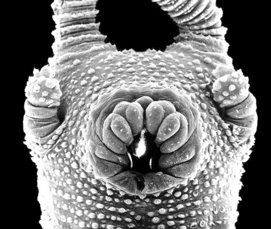 Electron fotografia microscópio da vista ventral de Epiperipatus hilkae Península de Nicoya, na Costa Rica. Em ambos os lados da boca, você pode ver as papilas oral, que funcionam como ejectores órgãos da goma. (Foto Bernal Morera, Universidade Nacional da Costa Rica)