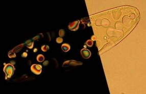 """A imagem mostra uma gotícula de nano-ADN condensado e dentro dele menores gotas da fase de cristal líquido que mostram-se na luz polarizada no lado esquerdo. As gotas de cristal líquido agir como """"micro-reactores"""" onde DNA curto podem se unir em longas cadeias de polímeros sem a ajuda de mecanismos biológicos. Crédito: Noel Clark, da Universidade de Colorado"""