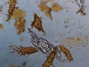 É possível observar osteócitos, estruturas marrons ramificadas, e colágeno, uma matriz fibrosa branca. Foram observadas no Brachylophosaurus