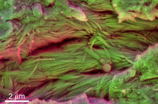 crédito da foto: Cor microscopia eletrônica de varredura de amostras extraídas de costelas de um dinossauro indeterminado exibindo fibras mineralizadas / Sergio Bertazzo