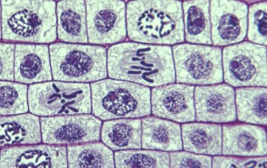 Vista do microscópio de múltiplos estágios da mitose