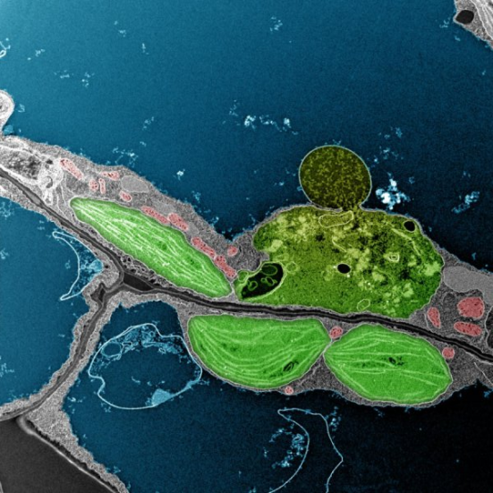Nas plantas, cloroplastos pode acumular altos níveis de oxigénio atómico tóxico, uma espécie de oxigênio reativo formado durante a fotossíntese. Nestas células, a maior parte dos cloroplastos (organelos verdes) e das mitocôndrias (organelas vermelho) parecem saudáveis. No entanto, o cloroplasto no canto superior esquerdo da imagem está sendo degradada seletivamente e está interagindo com o vacúolo central (azul). Salk cientistas revelam como esta estratégia para degradar cloroplastos danificados pelo oxigénio atómico pode ajudar uma célula de evitar mais danos oxidativos durante a fotossíntese. Crédito: Instituto Salk