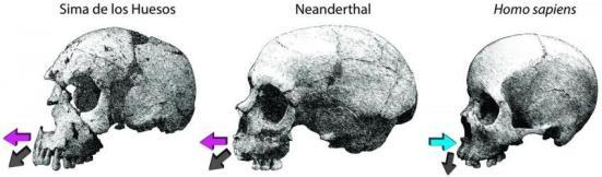 Direções de crescimento da maxila no Sima de los Huesos (SH) e neandertais em comparação com os humanos modernos. Esta impactos crescimento facial em pelo menos duas maneiras. (i) depósitos de ossos extensivas sobre a maxila nos fósseis são consistentes com uma forte componente de crescimento para a frente (setas roxas); Considerando que a reabsorção no rosto humano moderno atenua deslocamento para a frente (seta azul). (ii) A deposição combinado com maior desenvolvimento de cavidades nasais nos fósseis desloca a dentição frente gerar a característica espaço retromolar de neandertais e também em alguns fósseis SH. Crédito: Rodrigo S Lacruz