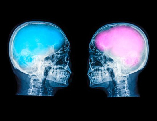 """""""Muitas pessoas acreditam que não há tal coisa como um"""" cérebro masculino """"e um"""" cérebro feminino """", disse o Dr. Eliot. """"Mas quando você olha para além dos estudos popularizaram - em coleções de todos os dados - você encontrará muitas vezes que as diferenças são mínimas."""" Crédito: © Tyron Molteni / Fotolia"""
