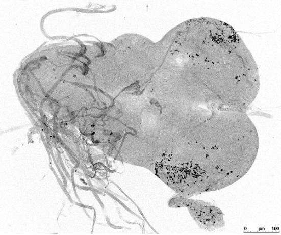 """Ao desativar um gene que mata ou esteriliza a descendência híbrida de duas espécies de moscas, pesquisadores da Universidade de Utah levaram-""""resgatado"""" uma mosca de fruta híbrida do sexo masculino que normalmente teria morrido em sua fase larval. Os pontos pretos nesta imagem de suas células mostram cérebro estão dividindo normalmente. Crédito: Aida de la Cruz, Fred Hutchinson Cancer Research Center"""