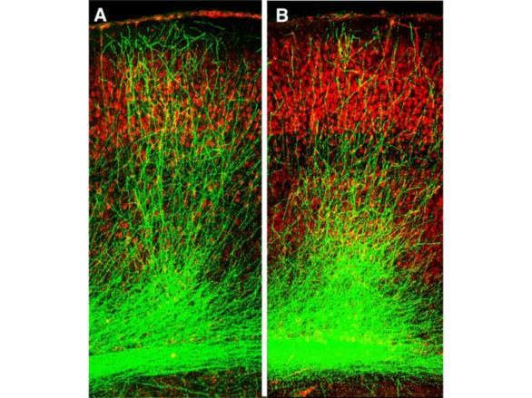 Os cientistas usaram um composto químico para regenerar conexões entre as células cerebrais, ou neurônios, que por sua vez restauram de déficits de memória. O crescimento anormal ou retardado de neurônios em centros de memória do cérebro é um indicador chave da esquizofrenia. Imagem cortesia do Instituto Zuckerman na Universidade de Columbia: Crédito