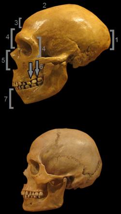 Neandertais tem a porção medial da face projetada para frente. Em 1 protuberância occipital chamada de coque; 2 crânio alongado para trás; 3 apresentavam uma testa baixa; 4 porção supraorbital proeminente formando um arco sobre as órbitas oculares; 5 abertura nasal ampla com protuberâncias ósseas nos lados da abertura; 6 espaços atrás dos molares; e 7 não tinham queixo. Clique para ampliar