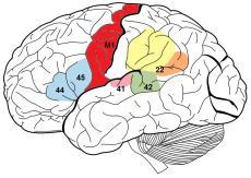 """O córtex auditivo primário é a parte do lobo temporal que processa a informação auditiva no seres humanos e outros vertebrados. Está localizado bilateralmente, mais ou menos nos lados superiores dos lobos temporais em seres humanos no plano temporal superior, dentro da fissura lateral e compreendendo partes do giro de Heschl e giro temporal superior, incluindo polare planum e plano temporal (aproximadamente áreas de Brodmann 41 , 42, e parcialmente 22). A área de Wernicke é uma das duas partes do córtex cerebral ligada a compreensão da linguagem falada e escrita (em contraste com a área de Broca [áreas 44 e 45] que está envolvido na produção de linguagem). É tradicionalmente considerada na área de Brodmann 22, que está localizado na secção posterior do giro temporal superior no hemisfério cerebral dominante. O termo """"M1"""" para o córtex motor primário são muitas vezes utilizados alternadamente. Ele trabalha em associação com a área de Broca, além dos movimentos oculares """"voluntários, rotação da cabeça e habilidades manuais."""
