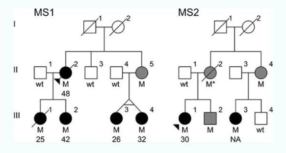 """As árvores genealógicas das duas famílias com a mutação causadora da MS. """"H"""" = indivíduos com a mutação. círculos pretos = indivíduos com MS e idade de início da doença. círculos cinzentos ou quadrados = indivíduos com a mutação cuja saúde é desconhecido. Crédito: Carles Vilarino-Guell / University of British Columbia."""
