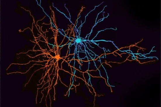 Dois neurônios da amígdala basolateral. neurocientistas MIT descobriram que estes neurónios desempenham um papel fundamental na separação de informação sobre experiências positivas e negativas. Crédito: Anna Beyeler e Praneeth Namburi