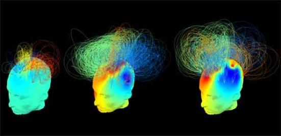 'Assinaturas' elétricas cerebrais. O paciente à esquerda se encontra num estado vegetativo; do paciente no meio também está num estado vegetativo, mas o seu cérebro aparece como consciente como o cérebro do indivíduo saudável à direita. Crédito: Srivas Chennu