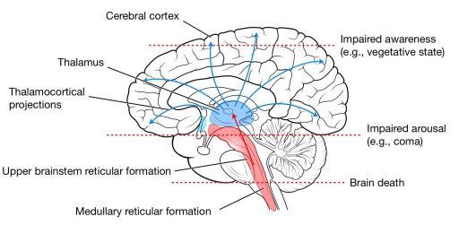 A imagem mostra os efeitos para a consciência resultante de diferentes níveis de interrupção. Imagem obtida a partir de [ref2]