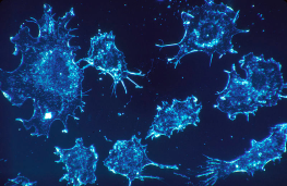 Célula cancerígena