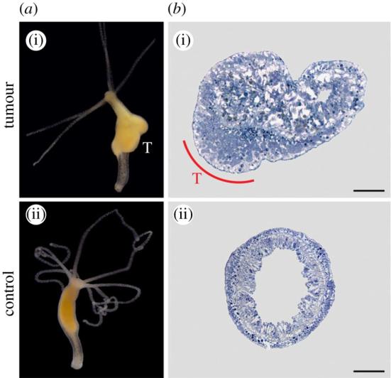 Câncer em hidra – Em hidras é frequente a presença de tumores , especialmente em Hydra oligactis e Pelmatohydra robusta. (a(i), b(i)) Um tumor em H. oligactis (marcado com um T) e (a (ii), b(ii)) controles normais (corpo inteiro e a seção transversal). Adaptado de Domazet-Loso et al apud Athena et al, 2015.