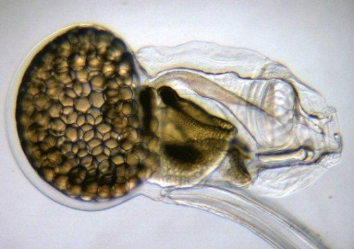 O cordados O. dioica, apesar de perder lotes de genes, mantém um plano corporal típica com órgãos e estruturas (coração, cérebro, tireóide, etc.) que podem ser considerados homólogos para os vertebrados. Cortesia da imagem da Universidad de Barcelona: Crédito