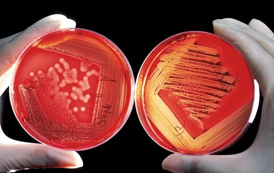 Colônia de bactérias. Fonte: Revista Galileu