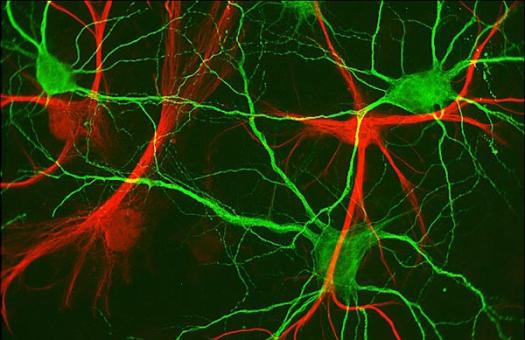 neurônios do hipocampo (verde) e células gliais (vermelho). Escala aproximadamente 90 microns. Imagem cortesia de Paul de Koninck da Universidade Laval.