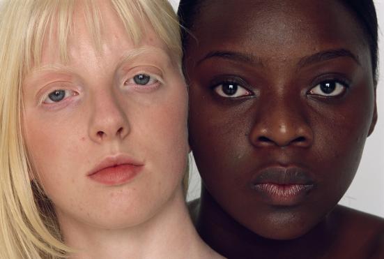 Variedades da pele humana. A pele nua foi a principal interface entre o corpo humano e a radiação solar durante a maior parte da história do gênero Homo.