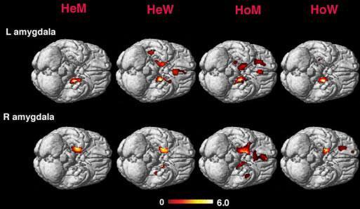 lguns atributos físicos do cérebro homossexual se assemelham aos encontrados no sexo oposto. Estas imagens mostram a amígdala em homens e mulheres heterossexuais (rotulados HeM e HeW) e homossexuais e mulheres (rotulados como HoM e HoW).
